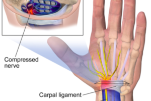 600px-Carpal_Tunnel_Syndrome