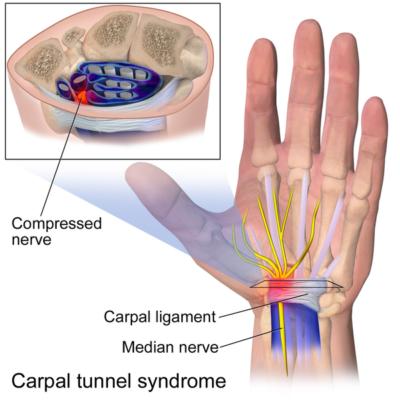 diagnose carpal tunnel syndrome